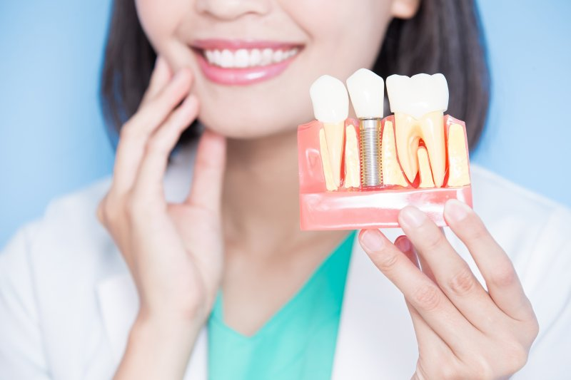 Dentist holding dental implant model